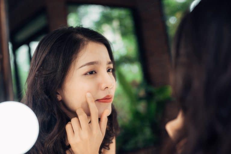 Mujer joven con problemas de acné