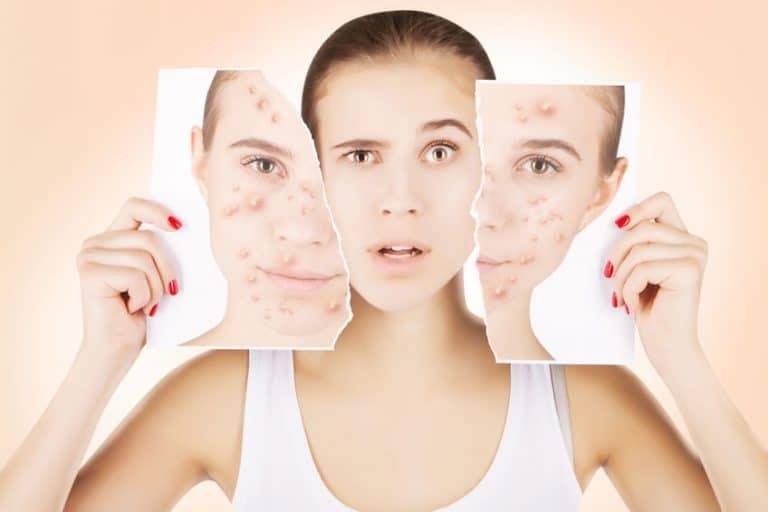 Con el ácido salicílico quedan atrás los problemas de acné