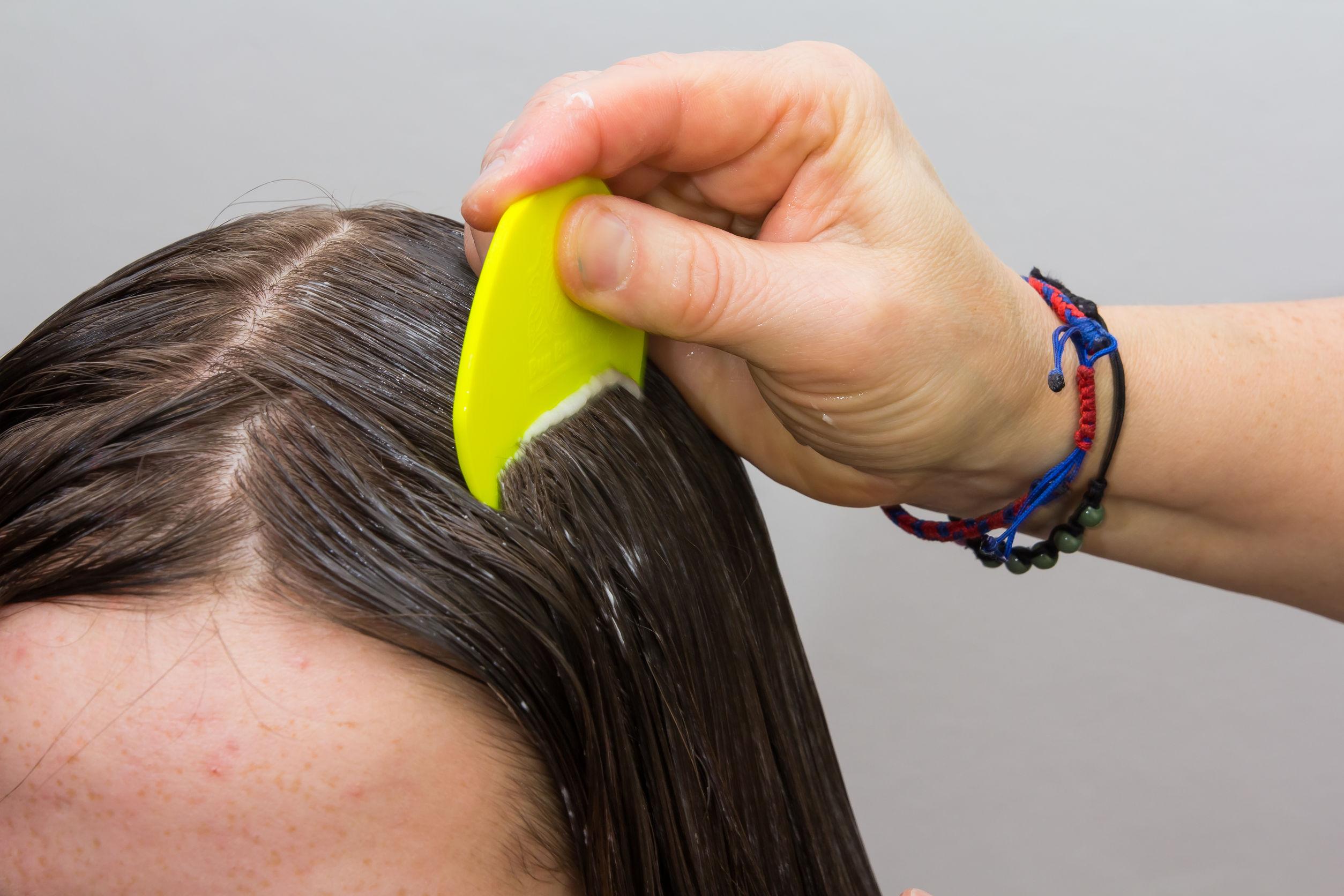 El cabello de las niñas se examina y limpia para detectar piojos